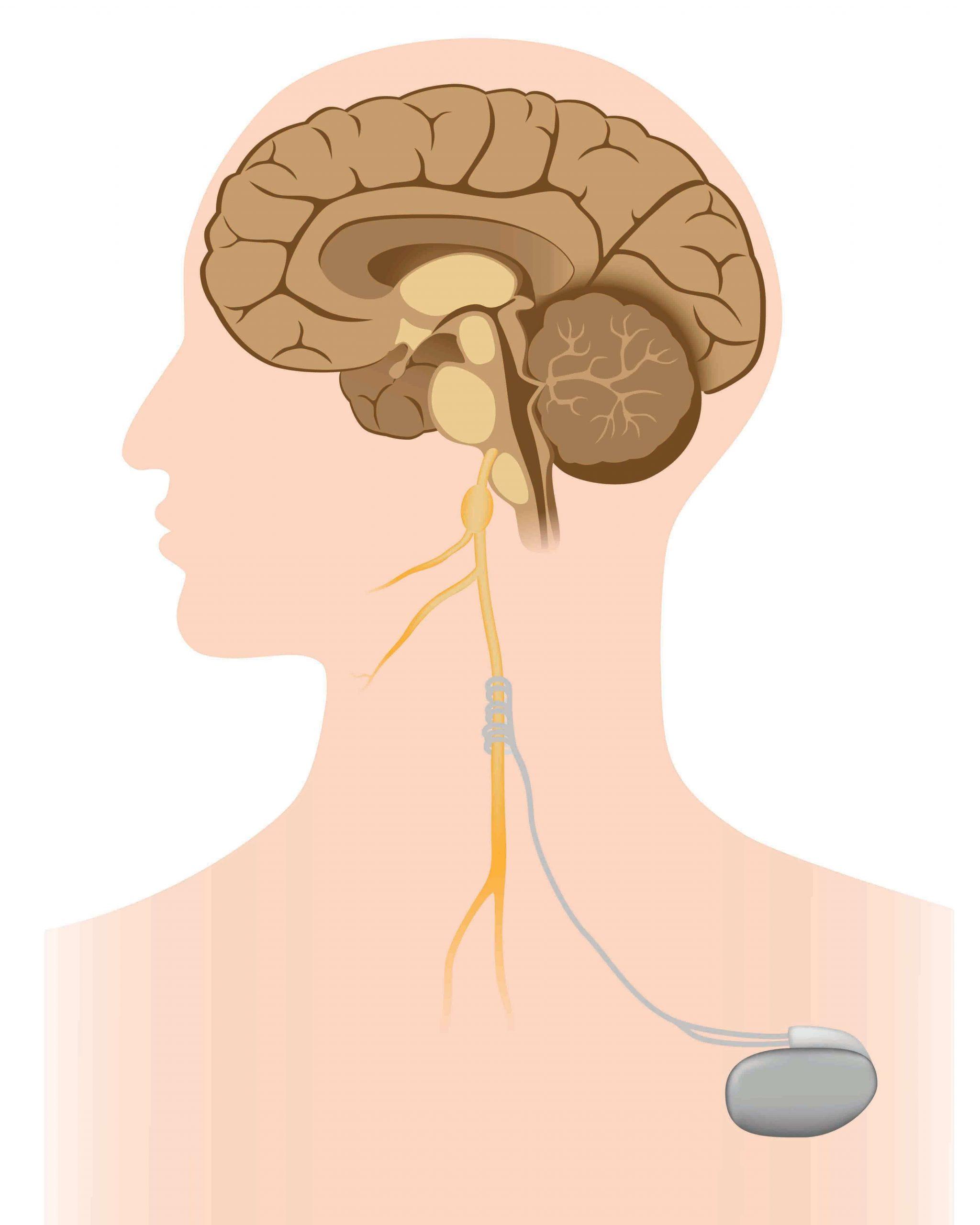 Stimularea nervului vag